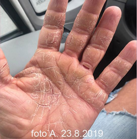 Suchý ekzém na rukách, popraskané dlane